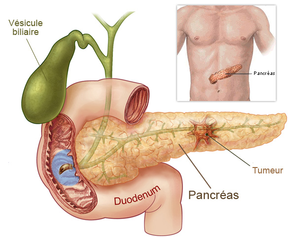 pancreatic cancer term paper