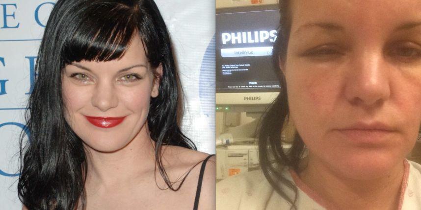 allergie a la coloration pauley perrette - Allergie Coloration Cheveux